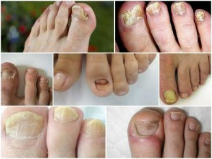That type of fungus on the nails of the feet - Tinedol